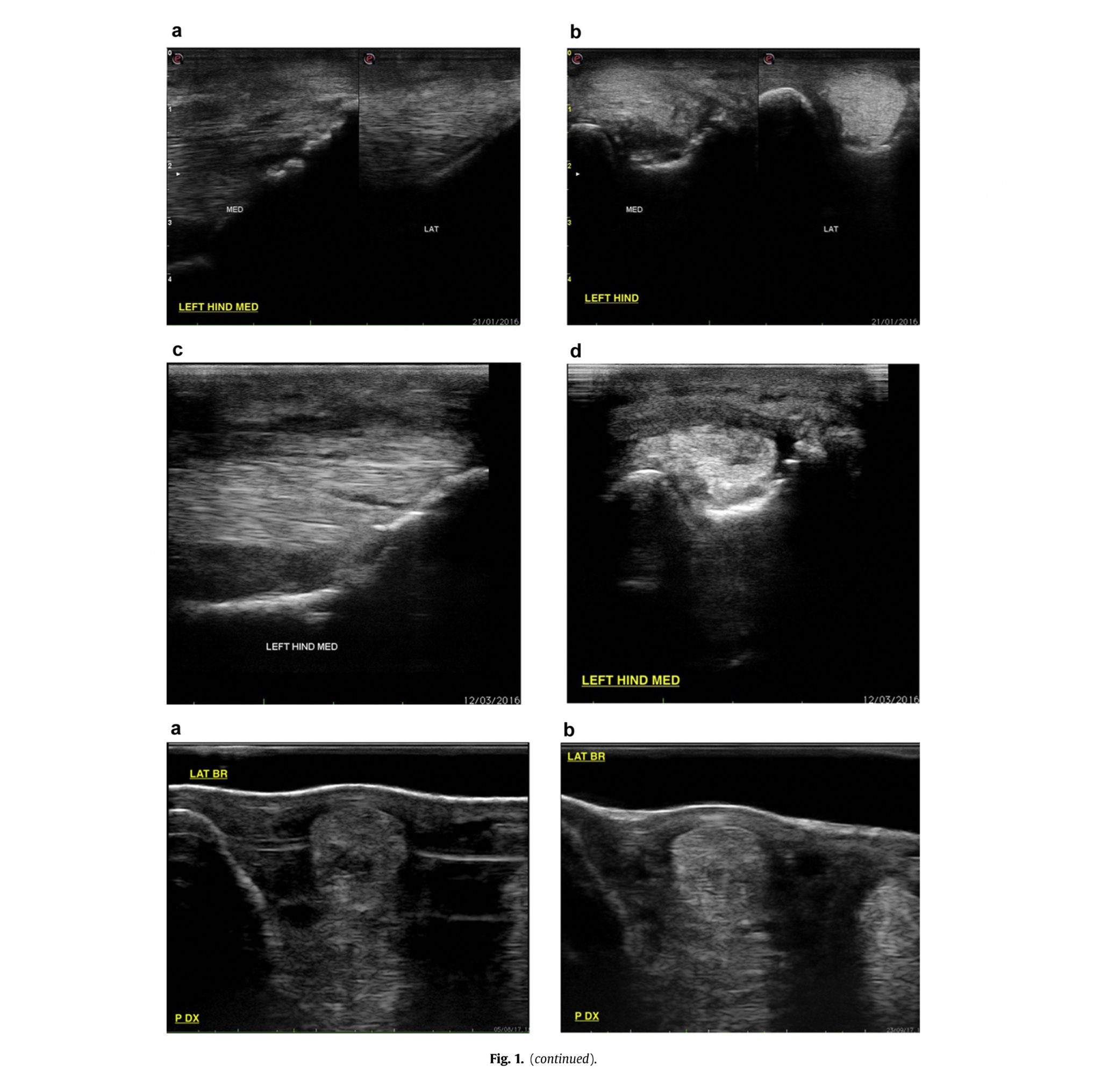 Assessment of Noninvasive Low-Frequency Ultrasound Therapy - Ultrasound Images 2